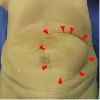 腹壁瘢痕ヘルニア(再発)
